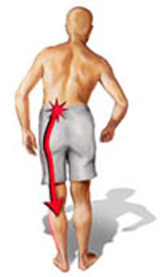 Sylwetka mężczyzny z zaznaczoną linią przebiegu bólu nerwu kulszowego