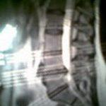 zdjęcie rentgenowskie kręgosłupa po zabiegu