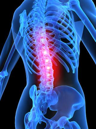 Cyfrowy obraz kręgosłupa z podświetlonym bolącym odcinkiem lędźwiowym