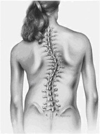 Skolioza- skrzywienie boczne kręgosłupa